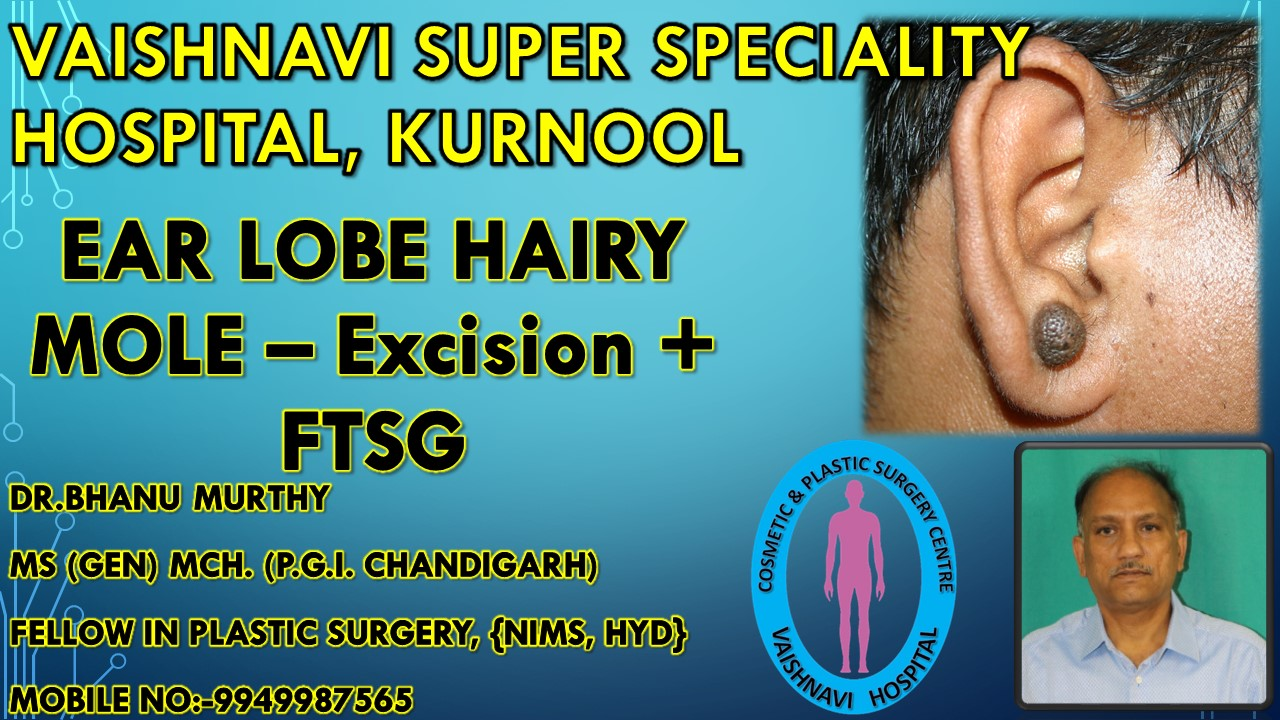 EAR LOBE HAIRY MOLE – Excision + FTSG INTRODUCTION Pre - op photo Intra op photo showing splintage -anterior view Intra op photo – FTSG (full thickness skin graft from posterior auricular area), donor area closure with 4 (0) prolene Plastic splint taken from piston of syringe 1 month AFTER SURGERY – slight hypo pigmentation Late POST OP PHOTO Comparision with opposite normal ear